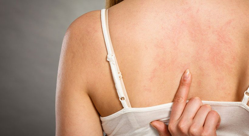 Eczema diet tips: Foods to eat and avoid